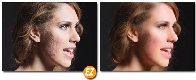 ví dụ xử lý da bằng Plugin Imagenomic Portraiture